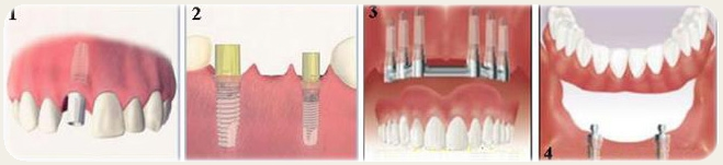 implanti.jpg